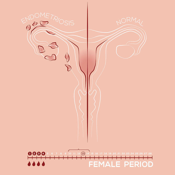 3-stades-endometriose-conscience-responsable